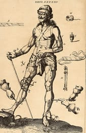 Johannes Scultetus (1595-1645). Armamentarium chirurgicum. Ulm: Typis& impenis Balthasari Kühnen, 1655.