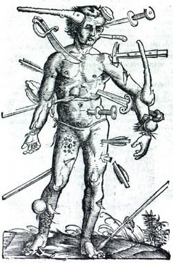 Hans von Gersdorff's, Feldtbuch der Wunderartzney