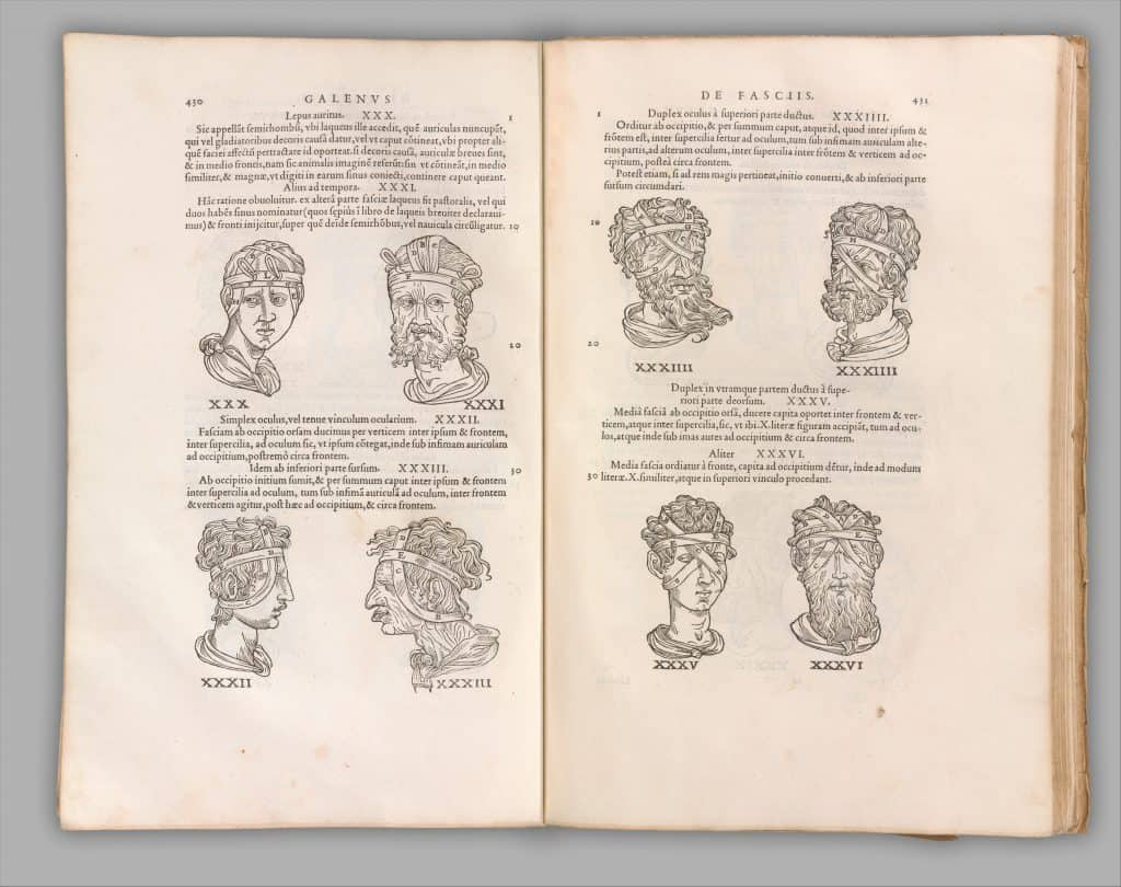 image of bandaging head wounds from book