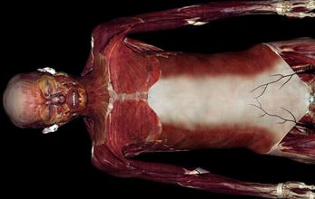 image of screen from anatomage table