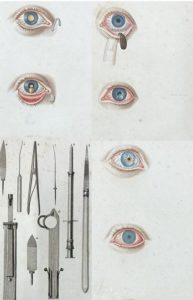 images of tools and eye disease