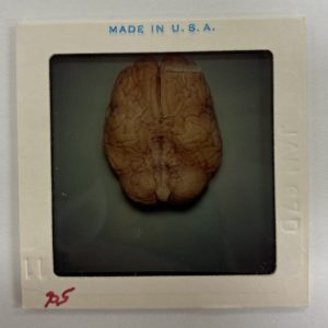 Slide image of Jack Ruby's brain